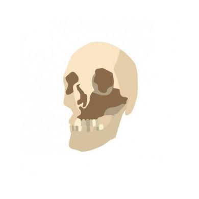 شبیه سازی سه بعدی فک بالا و پایین بیمار